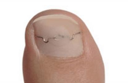 Medizinische Fußpflege / Podologie Berlin